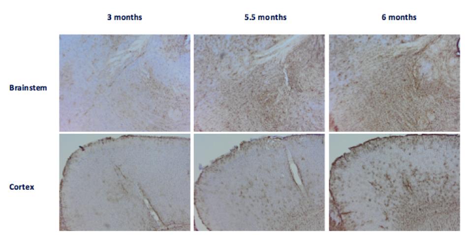 GFAP reactivity in brainstem and cortex of Tau
